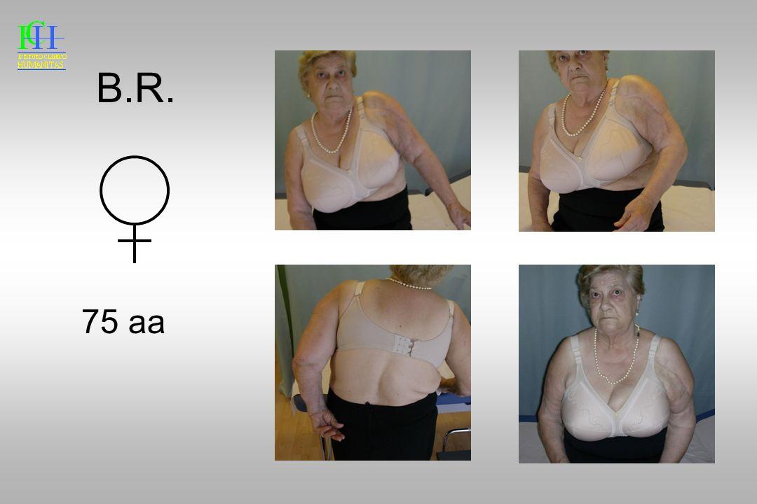 B.R. 75 aa Anche se clinicamente risultato modesto