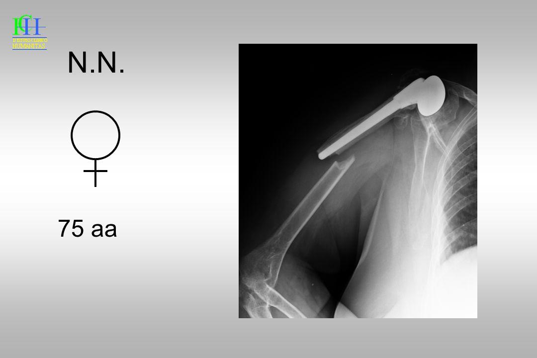 N.N. 75 aa Esiti endoprotesi su Fx