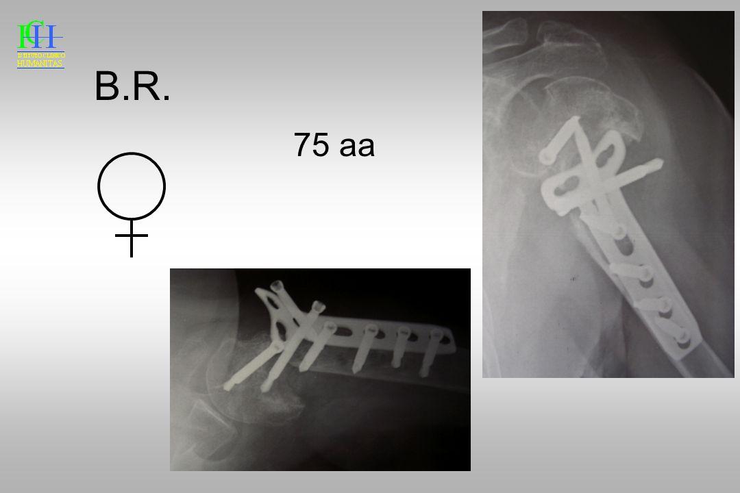 B.R. 75 aa Per il fallimento di una precedemte osteosintesi…