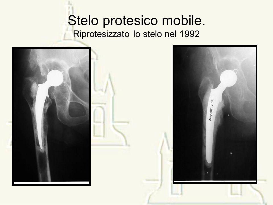 Stelo protesico mobile. Riprotesizzato lo stelo nel 1992
