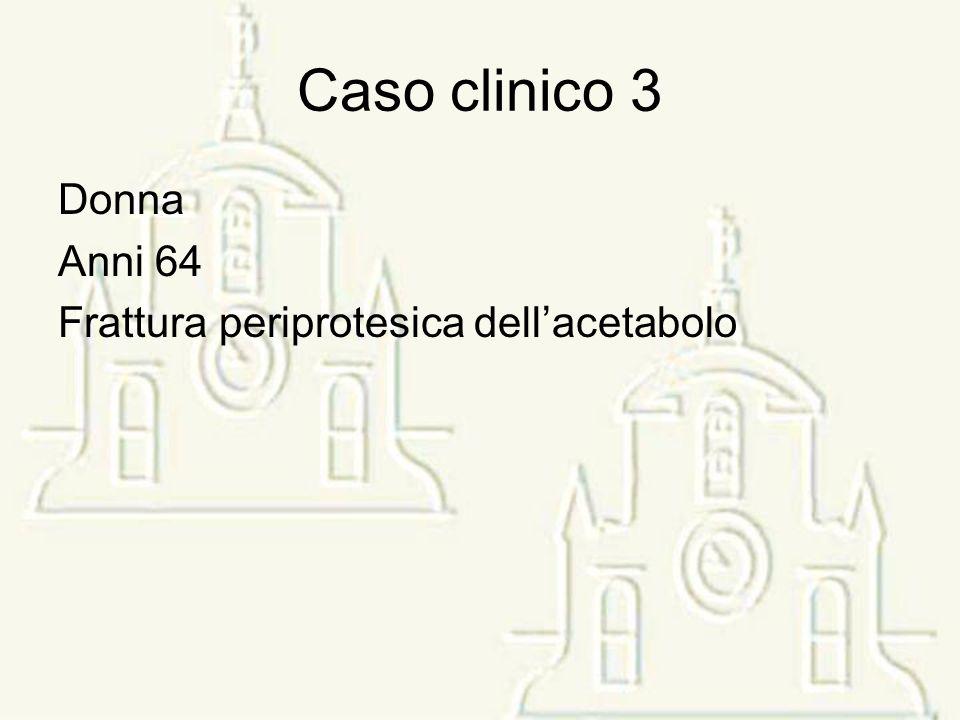 Caso clinico 3 Donna Anni 64 Frattura periprotesica dell'acetabolo
