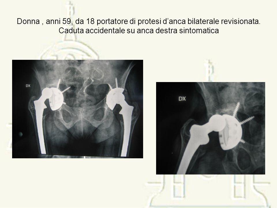 Donna , anni 59, da 18 portatore di protesi d'anca bilaterale revisionata.
