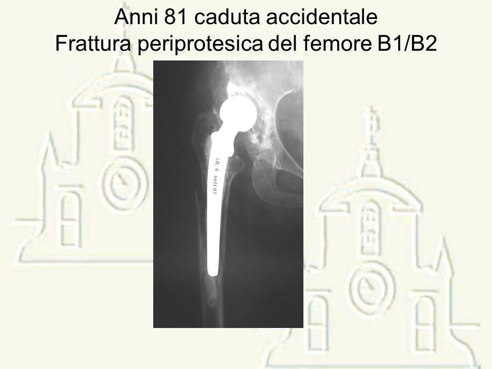 Anni 81 caduta accidentale Frattura periprotesica del femore B1/B2