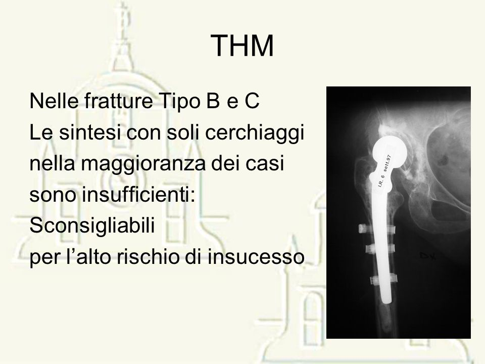 THM Nelle fratture Tipo B e C Le sintesi con soli cerchiaggi