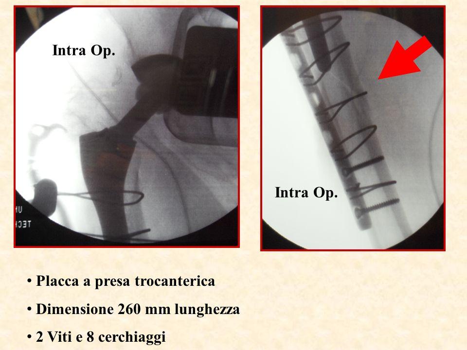 Intra Op. Intra Op. Placca a presa trocanterica Dimensione 260 mm lunghezza 2 Viti e 8 cerchiaggi