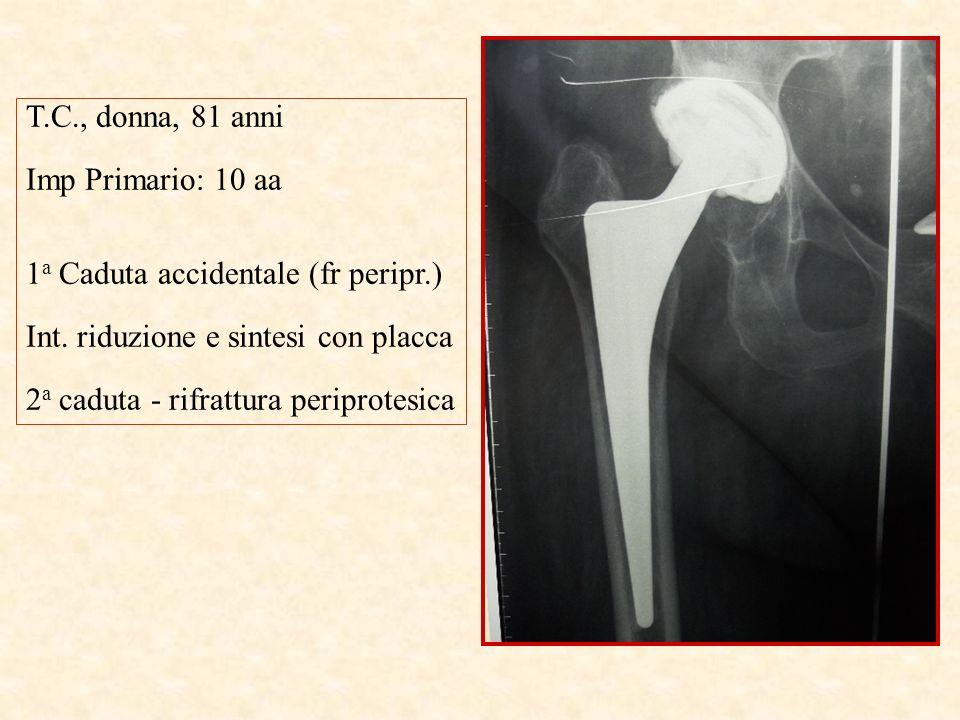T.C., donna, 81 anni Imp Primario: 10 aa. 1a Caduta accidentale (fr peripr.) Int. riduzione e sintesi con placca.