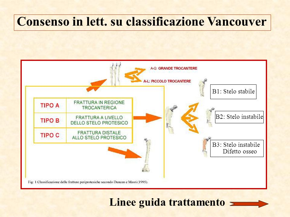 Consenso in lett. su classificazione Vancouver