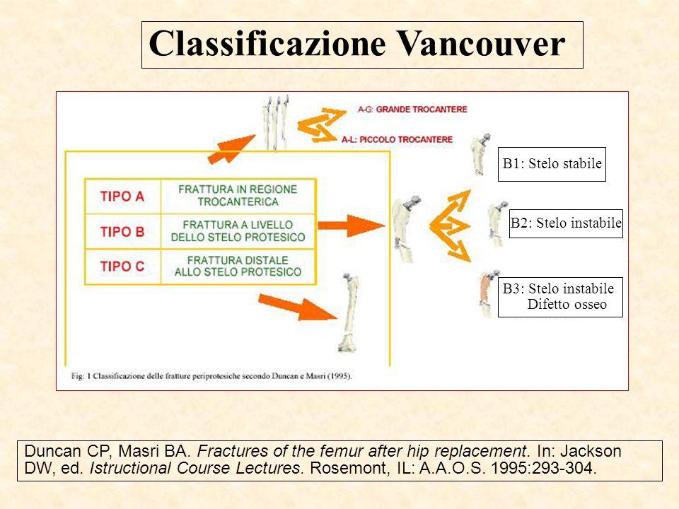 Classificazione Vancouver