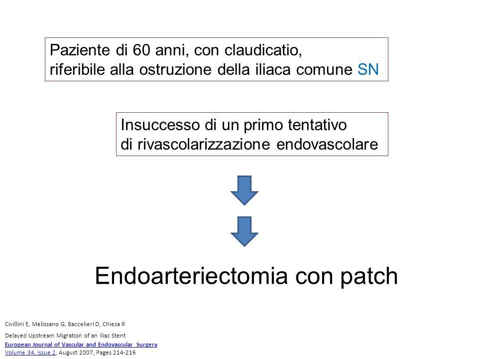 Endoarteriectomia con patch