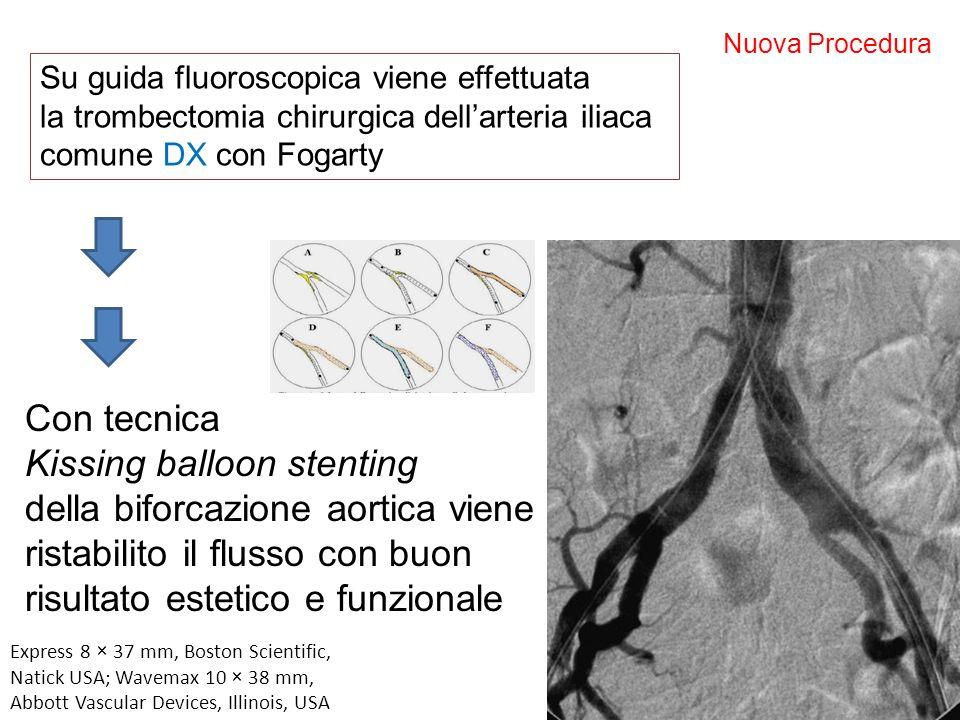 Kissing balloon stenting della biforcazione aortica viene