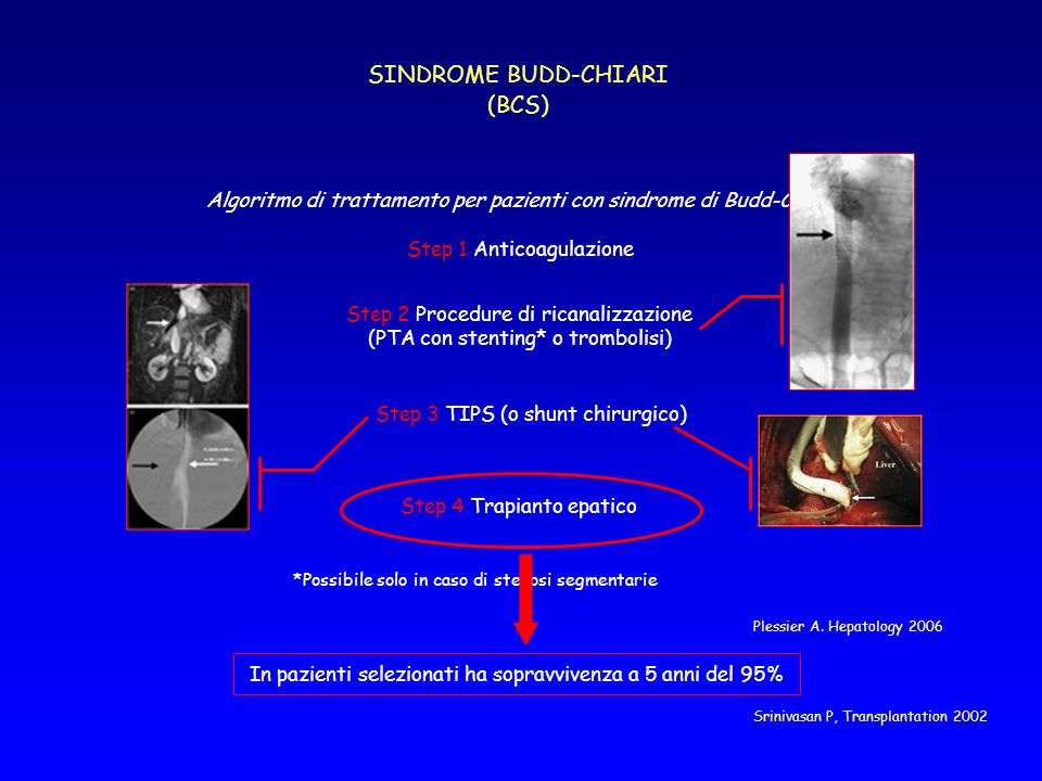 SINDROME BUDD-CHIARI (BCS)