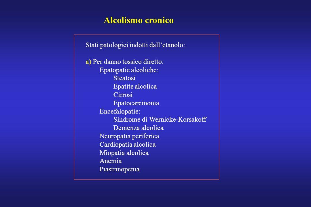 Alcolismo cronico Stati patologici indotti dall'etanolo: