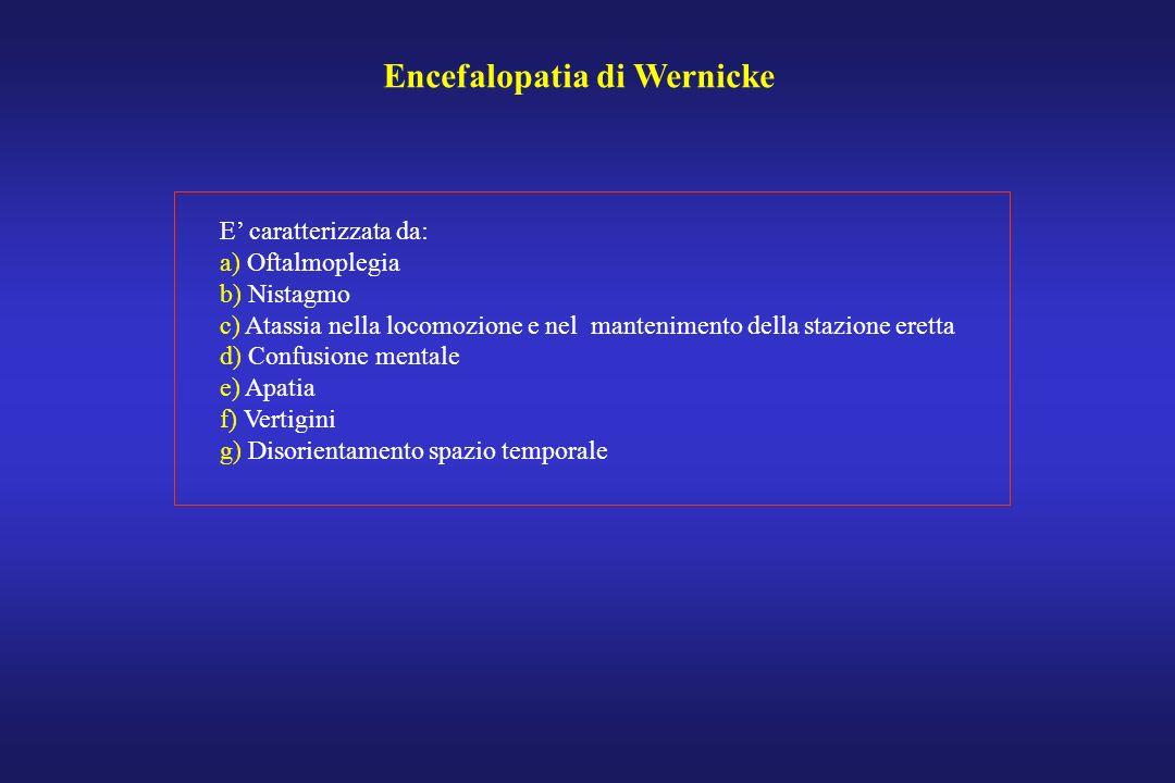 Encefalopatia di Wernicke