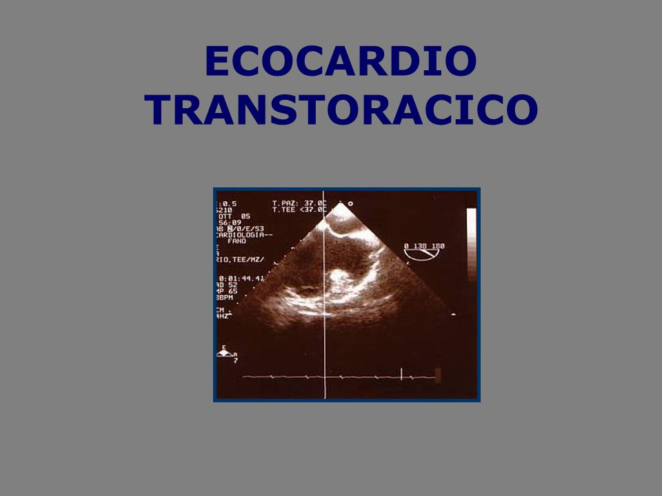 ECOCARDIO TRANSTORACICO