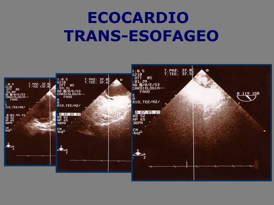 ECOCARDIO TRANS-ESOFAGEO