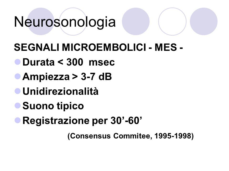 Neurosonologia SEGNALI MICROEMBOLICI - MES - Durata < 300 msec