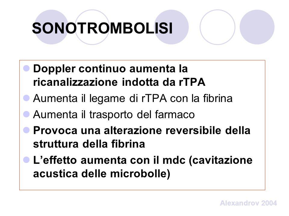 SONOTROMBOLISI Doppler continuo aumenta la ricanalizzazione indotta da rTPA. Aumenta il legame di rTPA con la fibrina.