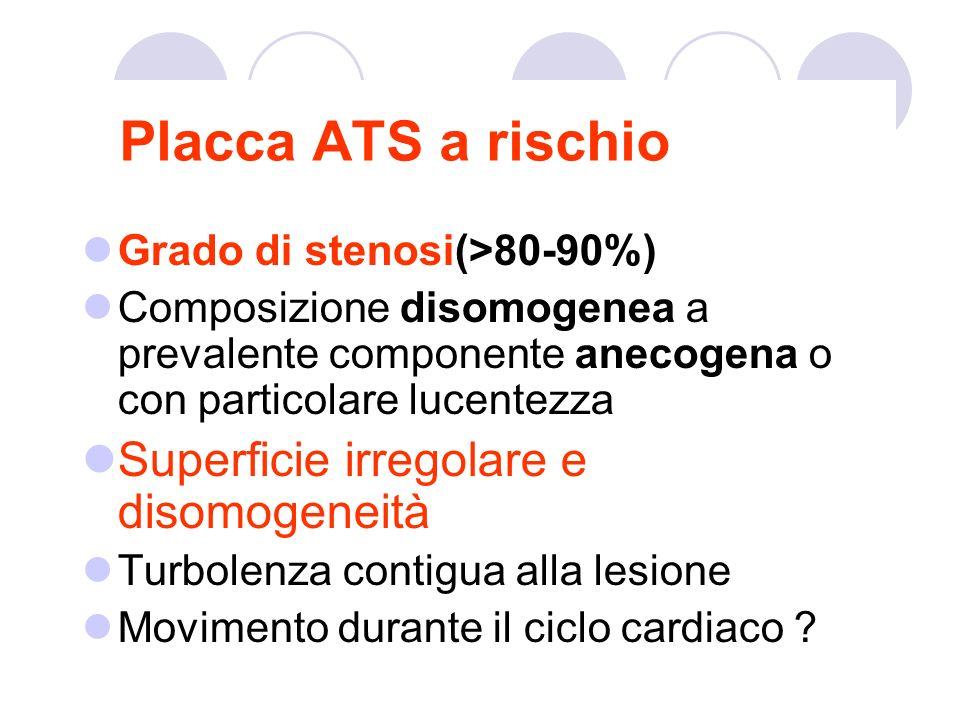 Placca ATS a rischio Superficie irregolare e disomogeneità