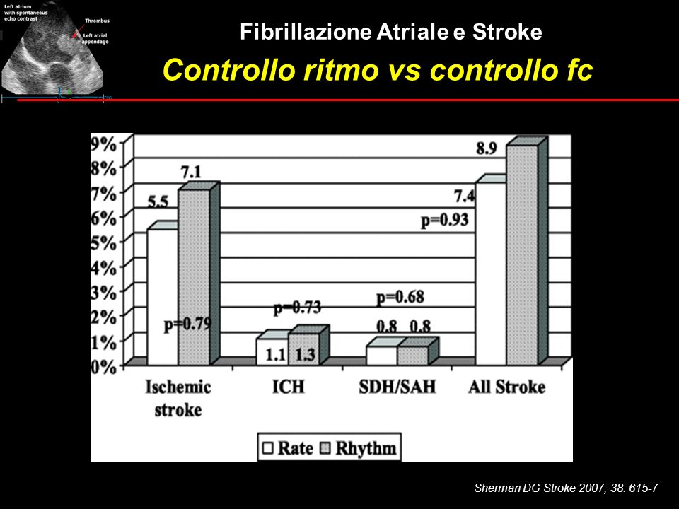 Controllo ritmo vs controllo fc