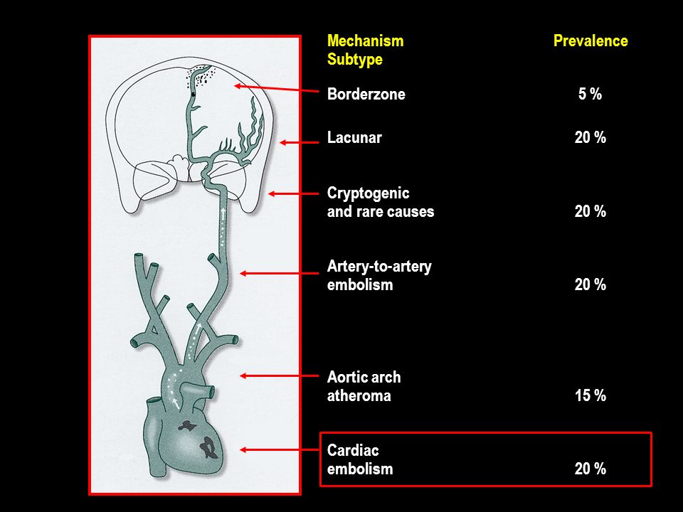 Mechanism Prevalence Subtype Borderzone 5 % Lacunar 20 % Cryptogenic