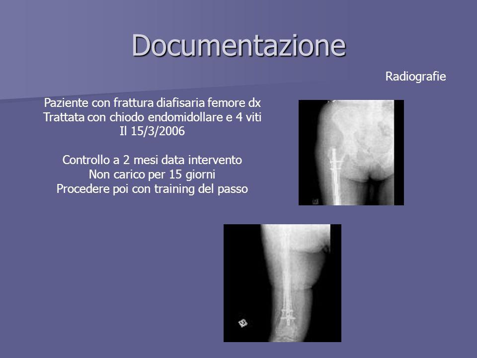 Documentazione Radiografie Paziente con frattura diafisaria femore dx