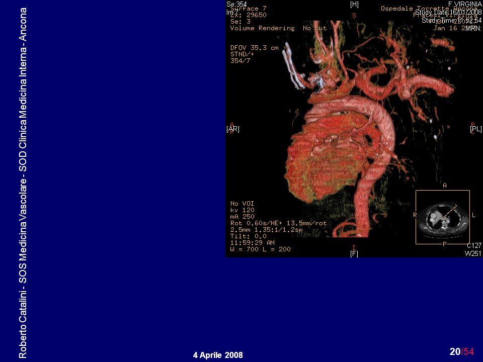 Roberto Catalini - SOS Medicina Vascolare - SOD Clinica Medicina Interna - Ancona