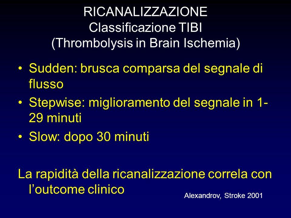 RICANALIZZAZIONE Classificazione TIBI (Thrombolysis in Brain Ischemia)
