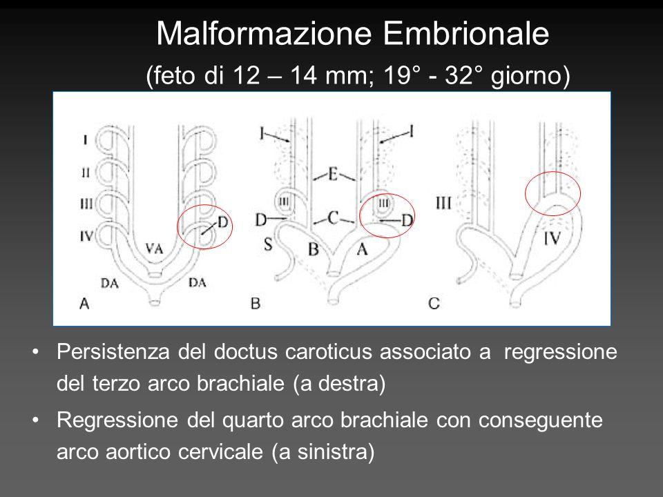 Malformazione Embrionale (feto di 12 – 14 mm; 19° - 32° giorno)