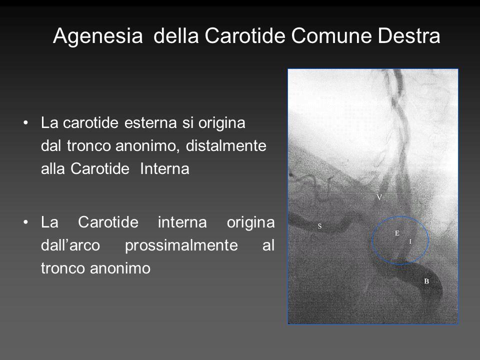 Agenesia della Carotide Comune Destra