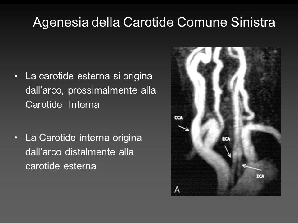 Agenesia della Carotide Comune Sinistra