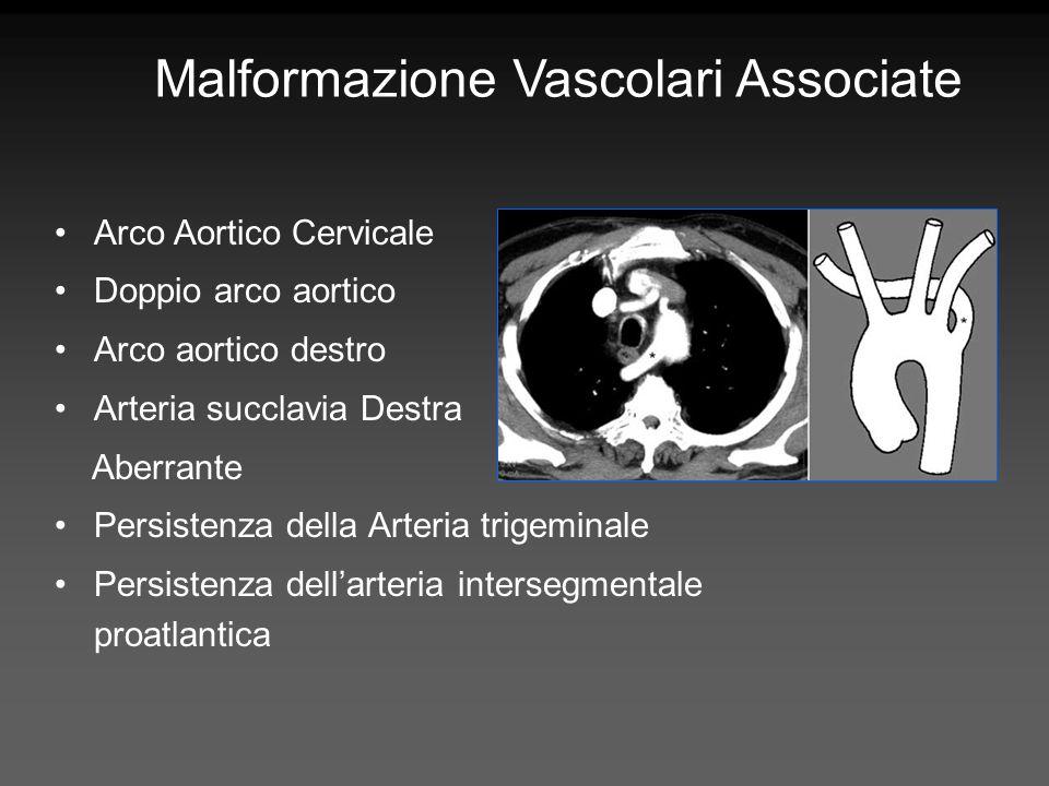 Malformazione Vascolari Associate
