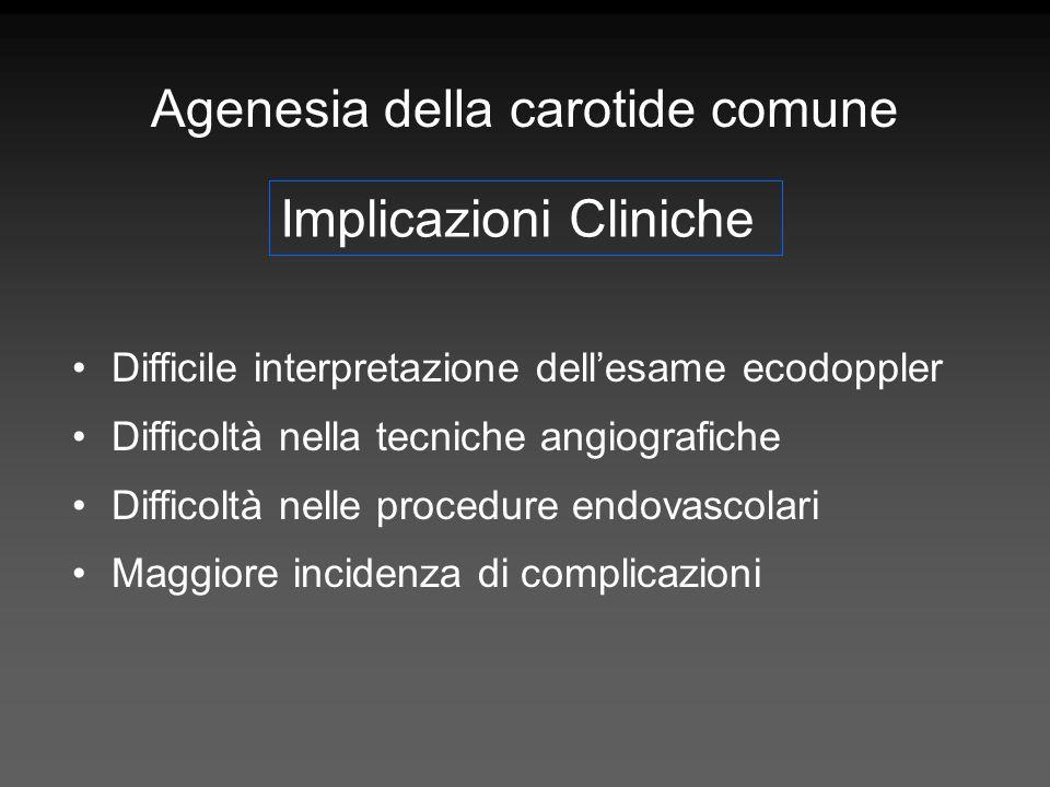 Agenesia della carotide comune