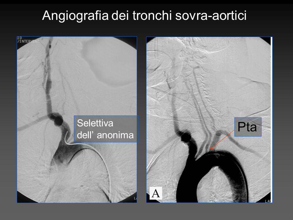 Angiografia dei tronchi sovra-aortici