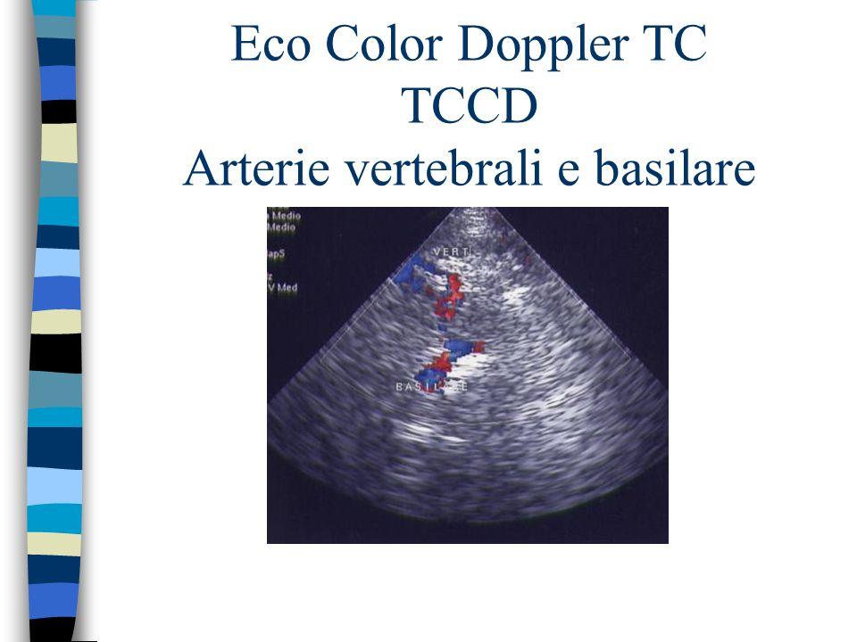 Eco Color Doppler TC TCCD Arterie vertebrali e basilare
