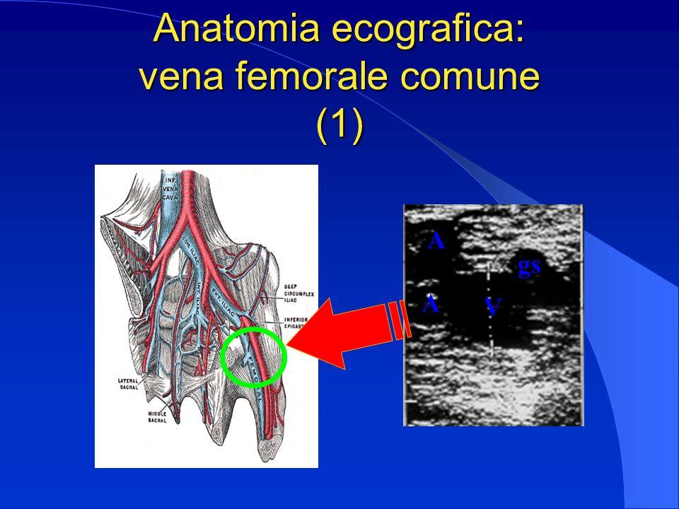Anatomia ecografica: vena femorale comune (1)