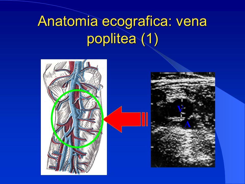 Anatomia ecografica: vena poplitea (1)