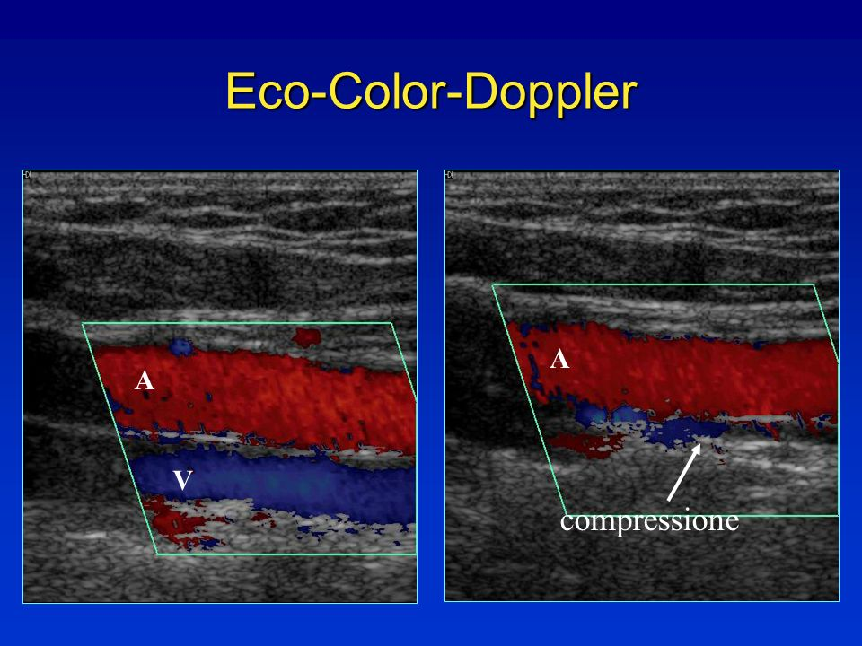 Eco-Color-Doppler A V compressione