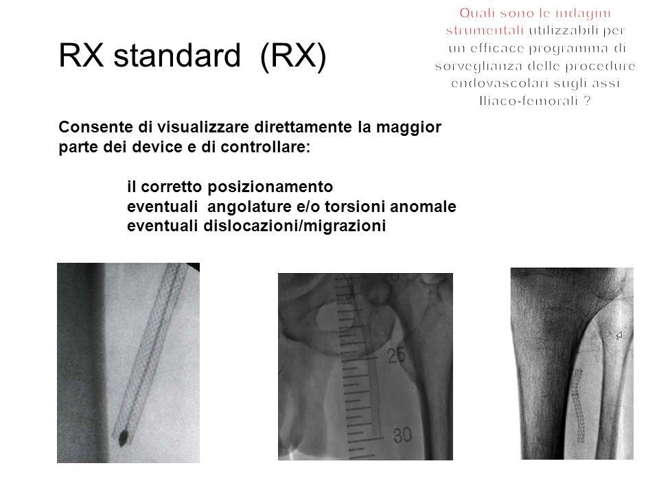 RX standard (RX) Consente di visualizzare direttamente la maggior
