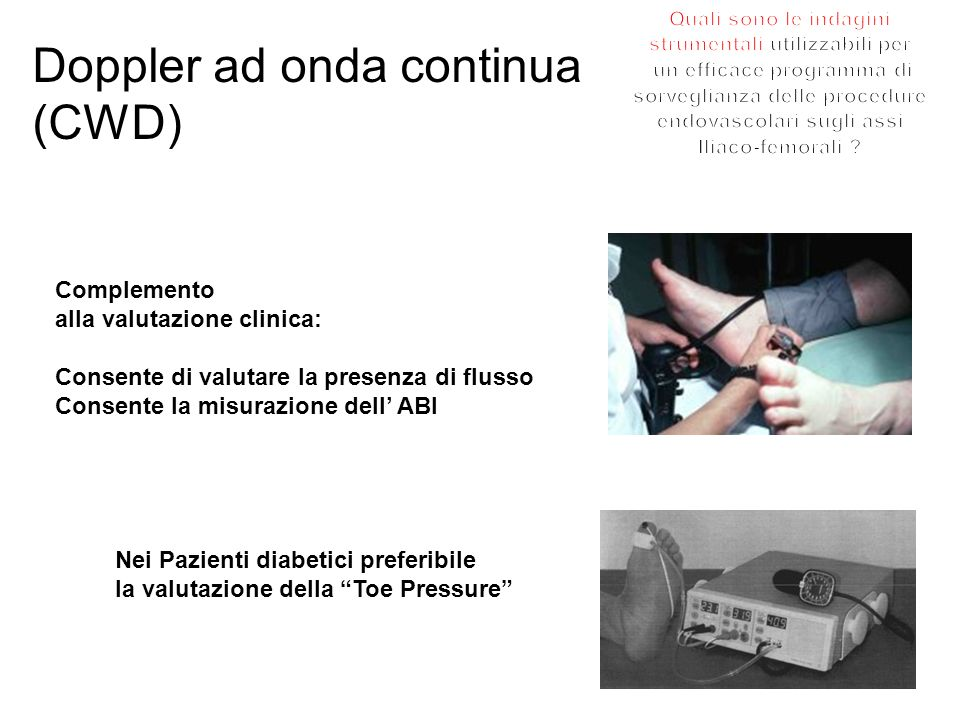 Doppler ad onda continua (CWD)