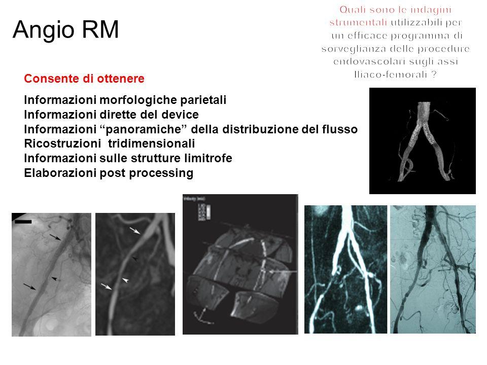 Angio RM Consente di ottenere Informazioni morfologiche parietali