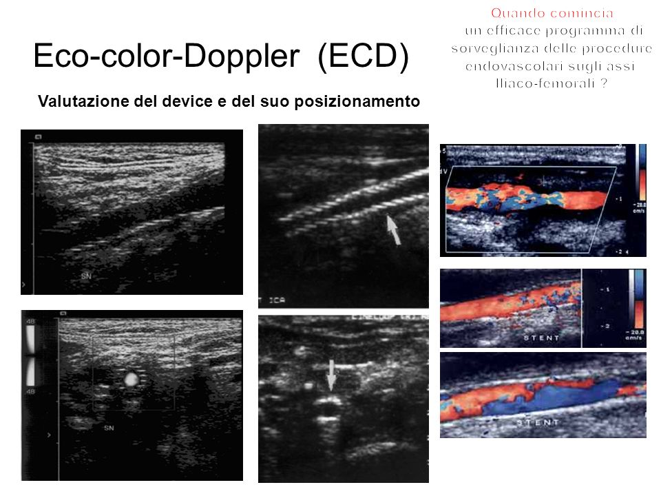 Eco-color-Doppler (ECD)