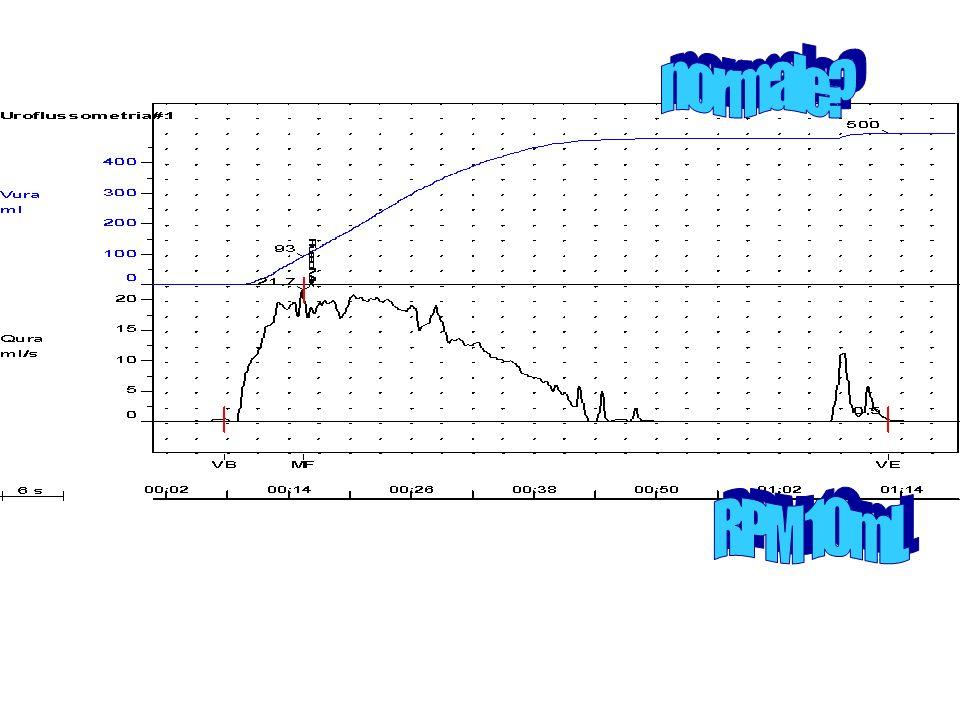 normale RPM 10ml.