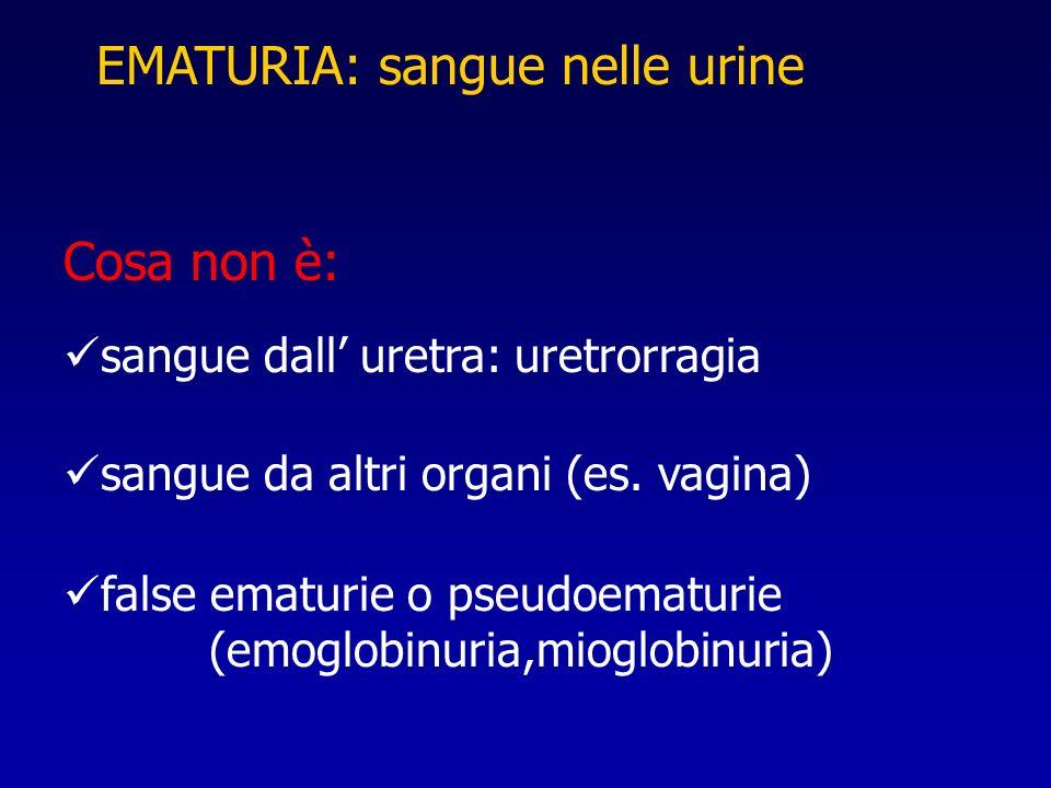 EMATURIA: sangue nelle urine
