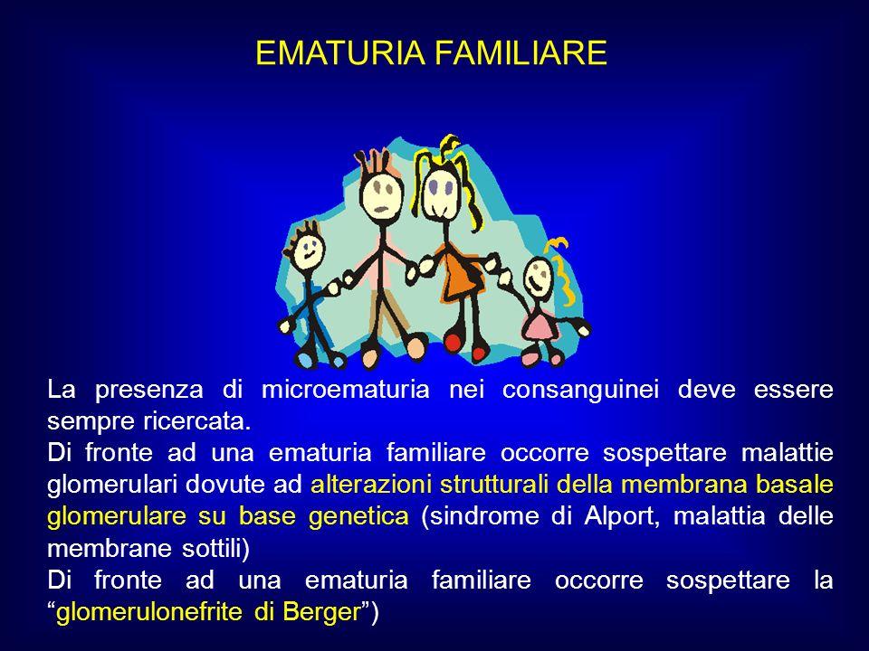 EMATURIA FAMILIARE La presenza di microematuria nei consanguinei deve essere sempre ricercata.