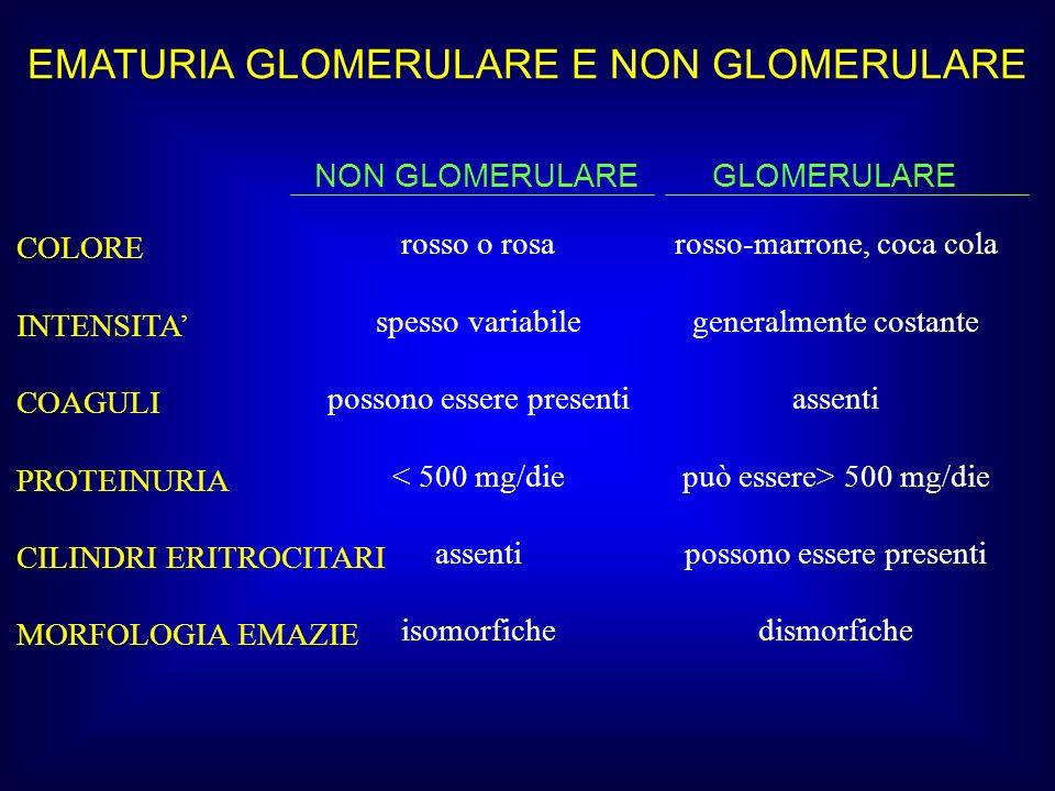 EMATURIA GLOMERULARE E NON GLOMERULARE