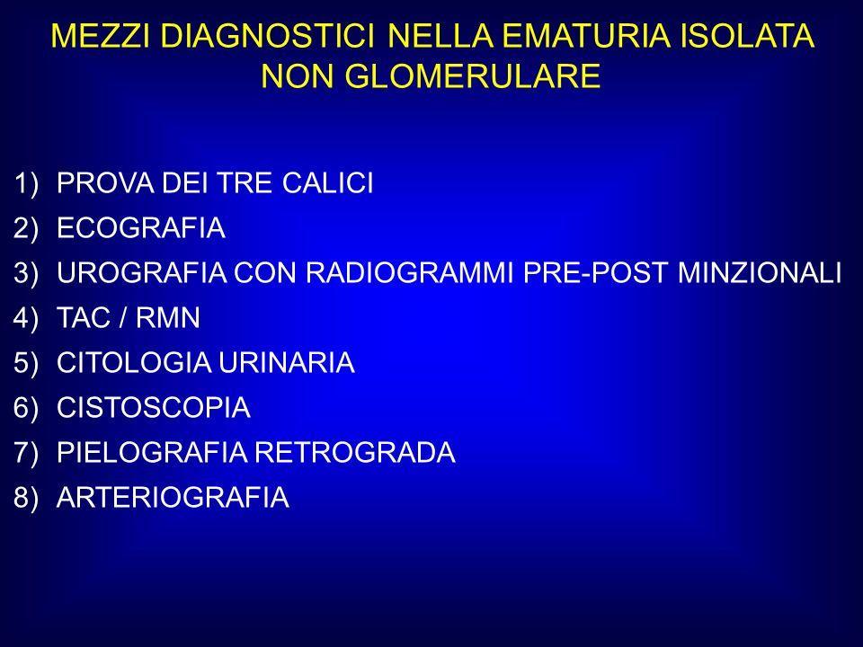 MEZZI DIAGNOSTICI NELLA EMATURIA ISOLATA NON GLOMERULARE