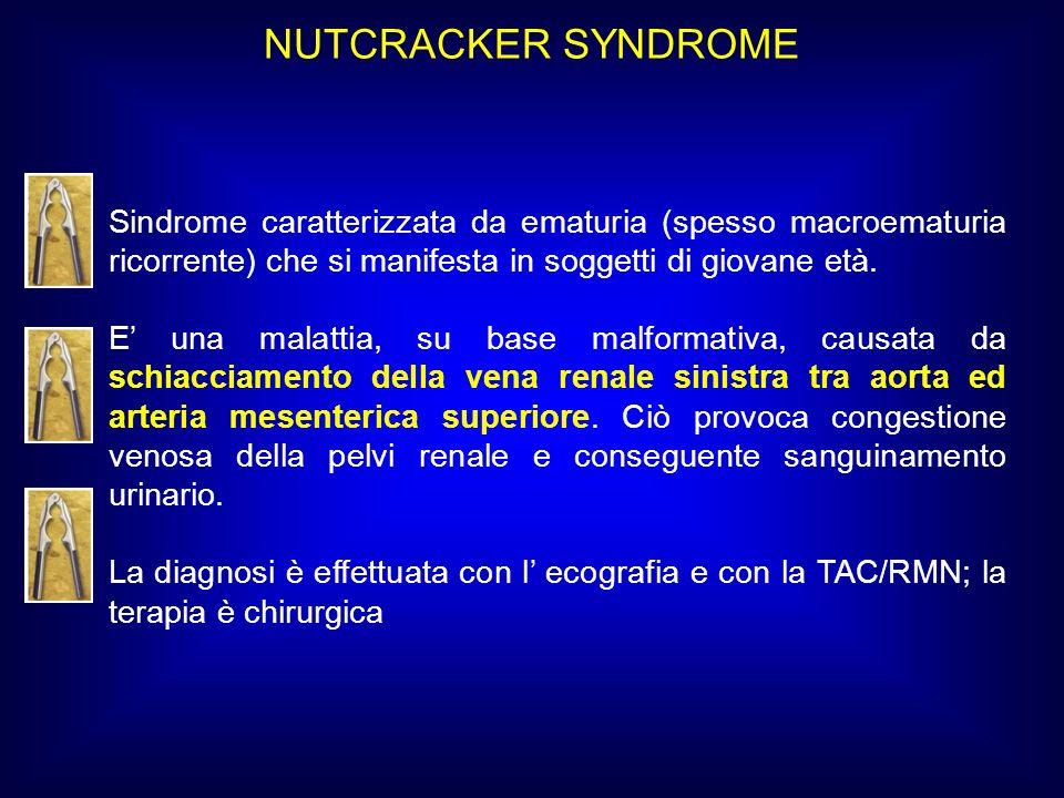 NUTCRACKER SYNDROME Sindrome caratterizzata da ematuria (spesso macroematuria ricorrente) che si manifesta in soggetti di giovane età.