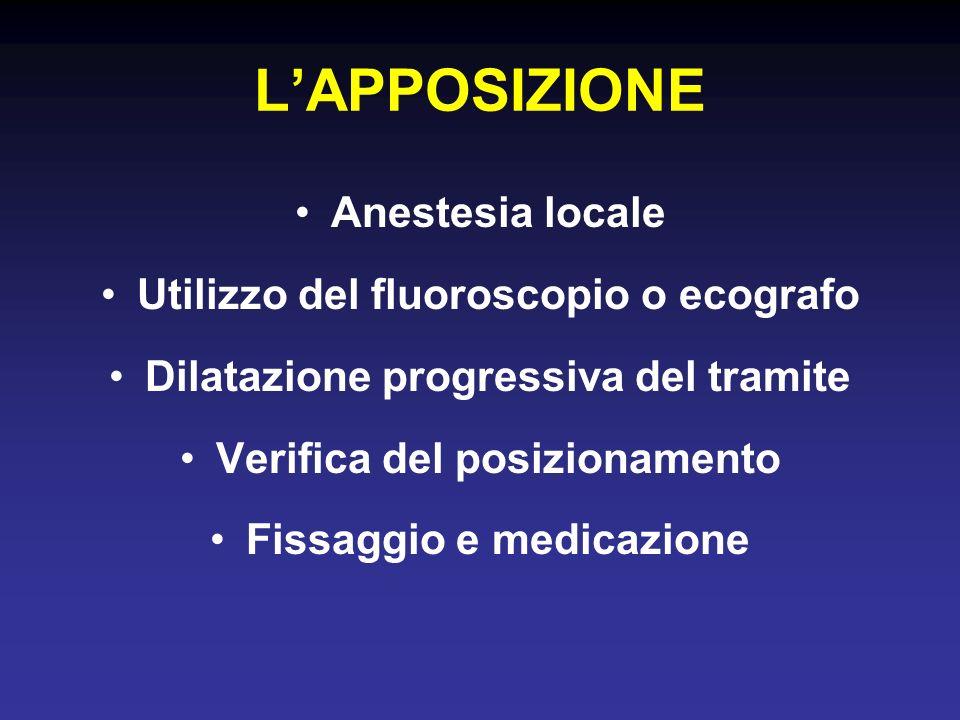 L'APPOSIZIONE Anestesia locale Utilizzo del fluoroscopio o ecografo