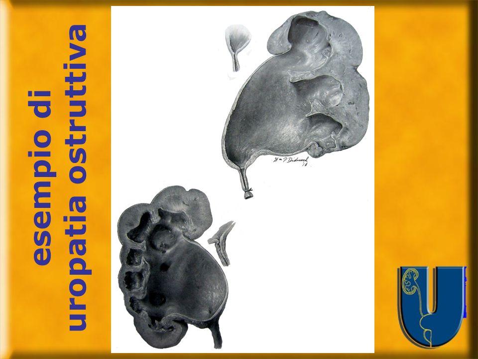 esempio di uropatia ostruttiva