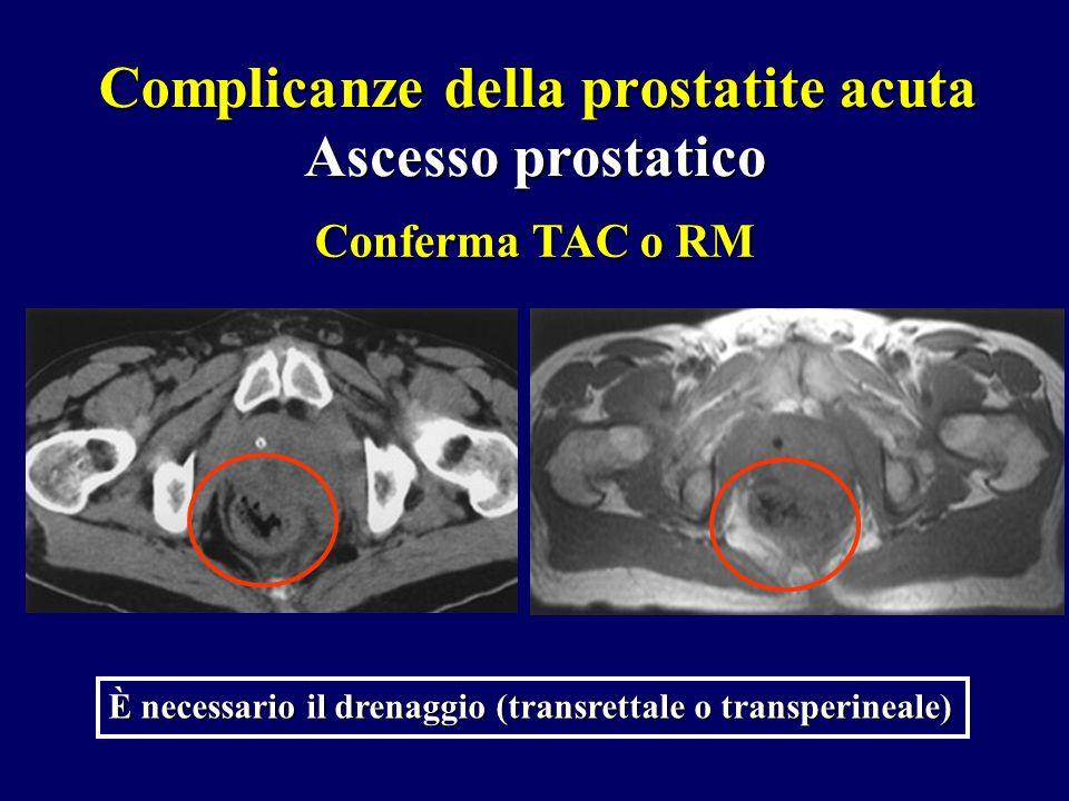 Complicanze della prostatite acuta